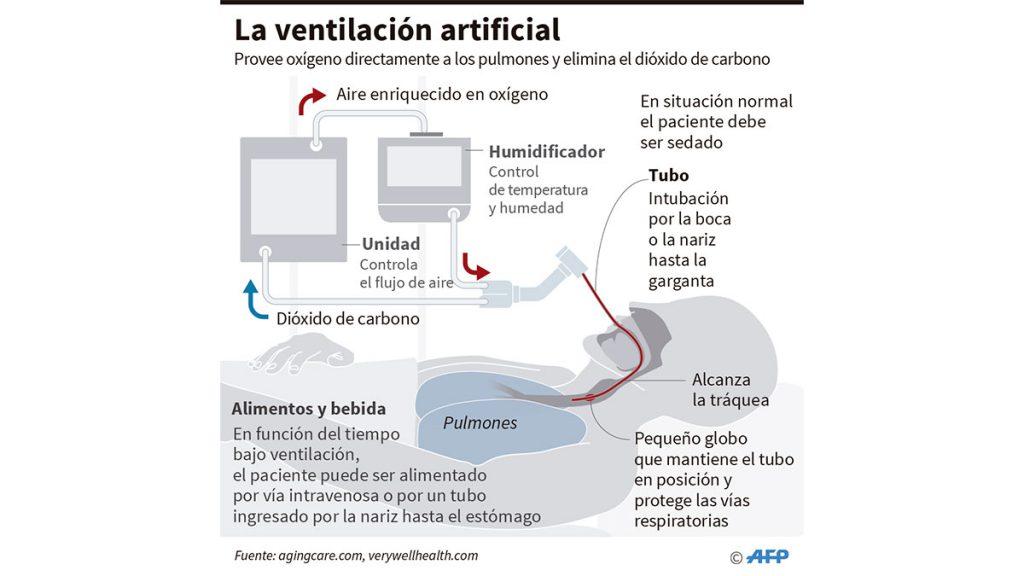 ventilacion_artificial